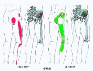 坐骨神経痛 トリガーポイント