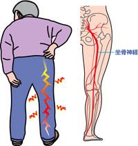 「坐骨神経痛 イラスト」の画像検索結果