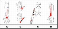 前腕屈筋群 トリガーポイント 2
