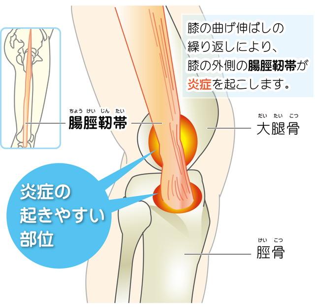 5742d49ef5 腸脛靭帯とは、腸骨(骨盤の骨)から太ももの外側を通り、脛骨(すねの骨)に付着する筋膜の繊維束(少し固いゴムバンドのようなもの)です。